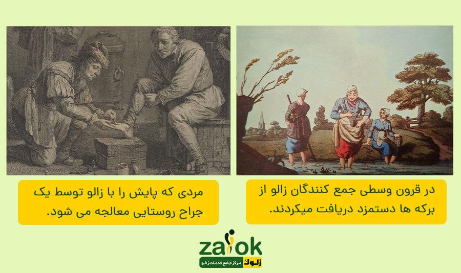 تاریخچه زالو